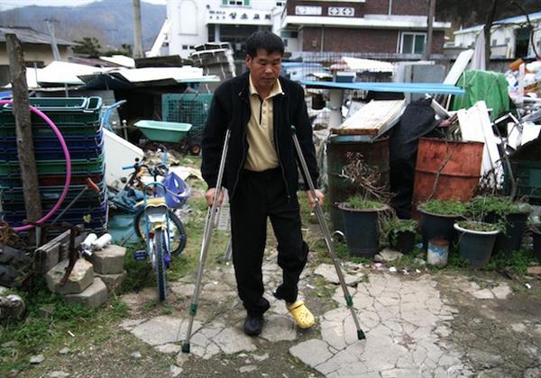 다리 골절로 생업이 중단된 일곱 가족의 가장, 이종수 씨의 희망이야기!