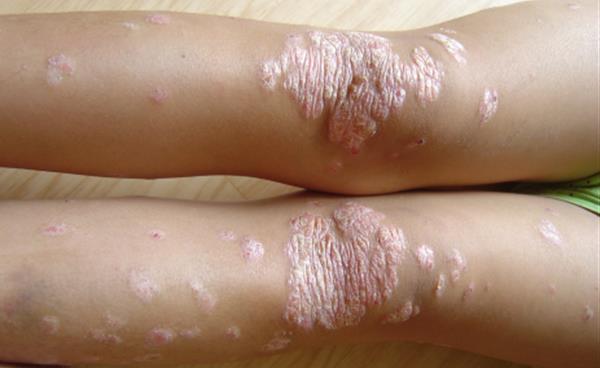 대표적인 난치성 피부질환 '건선'의 원인과 치료법