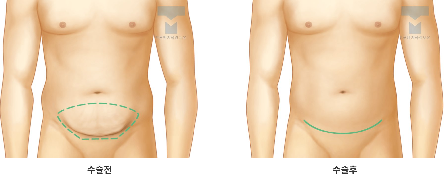 부분 복부 성형 (좁은 범위의 하복부)