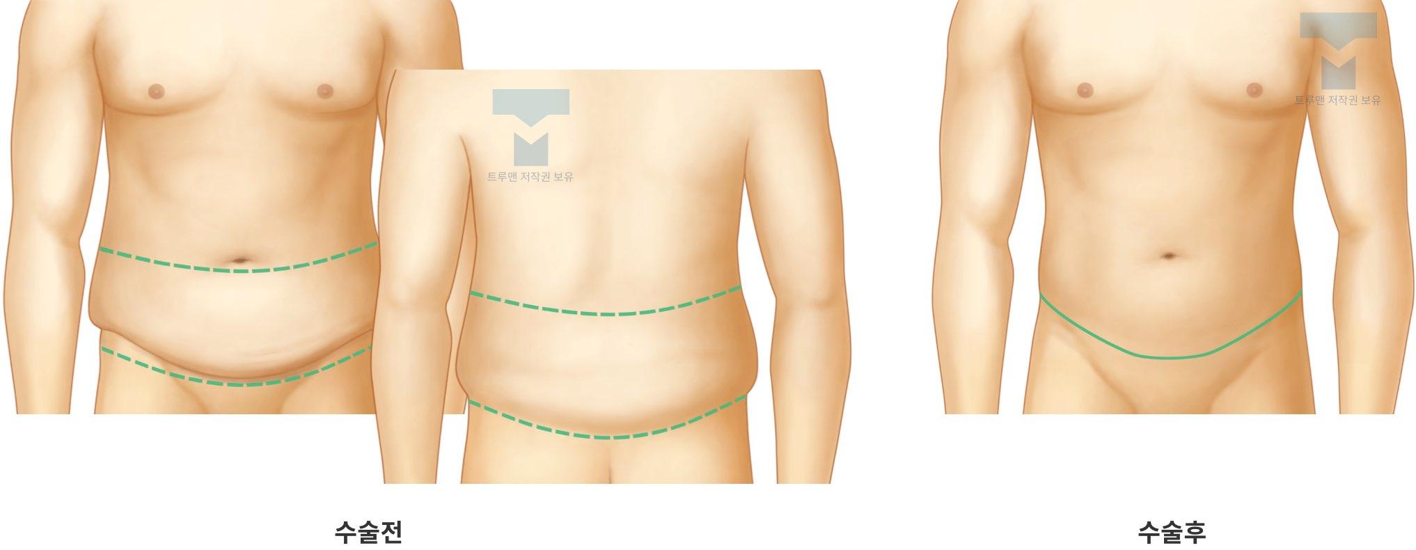 입체(360도) 복부 성형