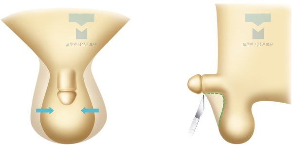 음낭 피부 교정