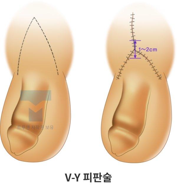 V-Y 피판술