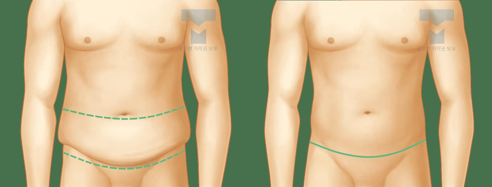 트루맨 처진 복부 교정 수술