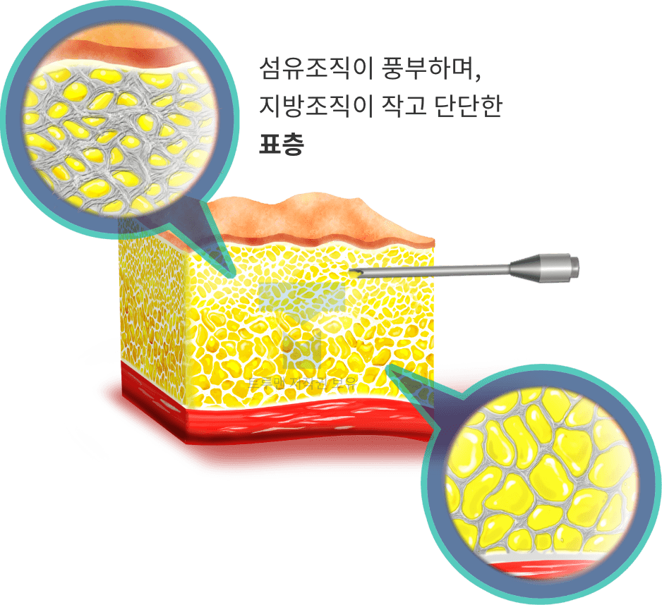 트루맨 표층지방 이식법