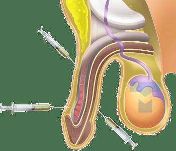 표층지방 이식법1