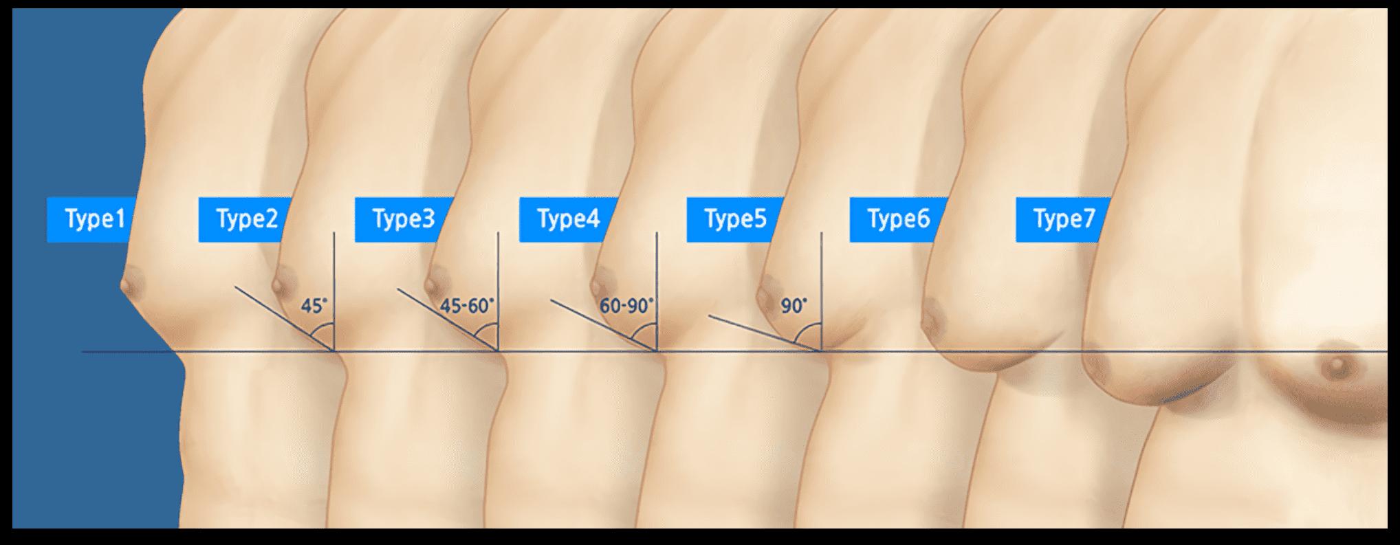 여유증 가슴의 발달 정도에 따른 7가지 타입