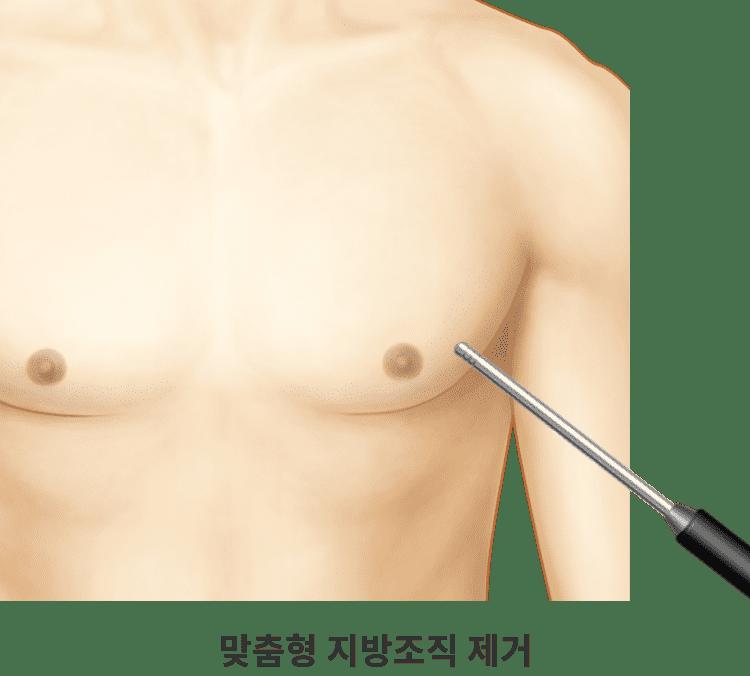 트루맨 맞춤형 여유증 수술