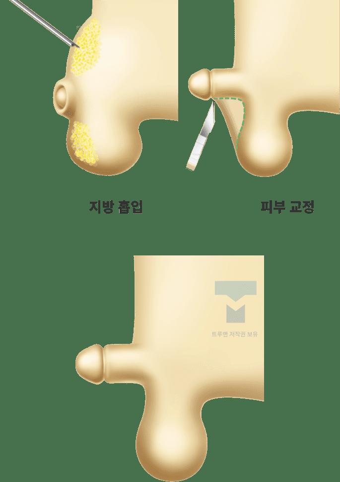 트루맨 치골 지방 흡입
