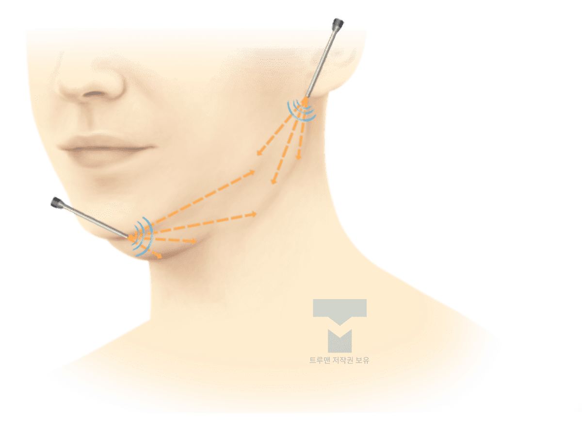트루맨 턱 지방 흡입