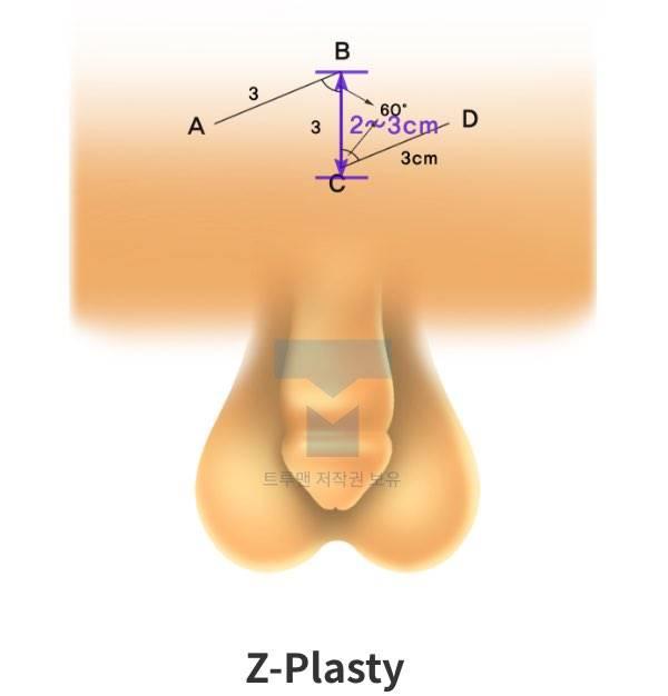 Z-Plasty