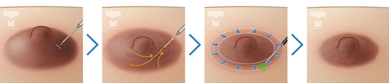 유륜 하부에 지방 및 섬유 조직이 있는 경우