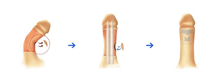 발기부전 보형물 백막 성형 복합 수술
