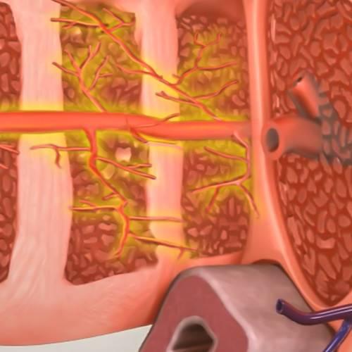 ED1000 치료 후 음경 혈관