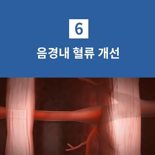 음경내 혈류 개선