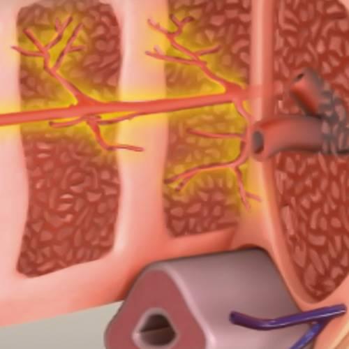 ED1000 치료 전 음경 혈관
