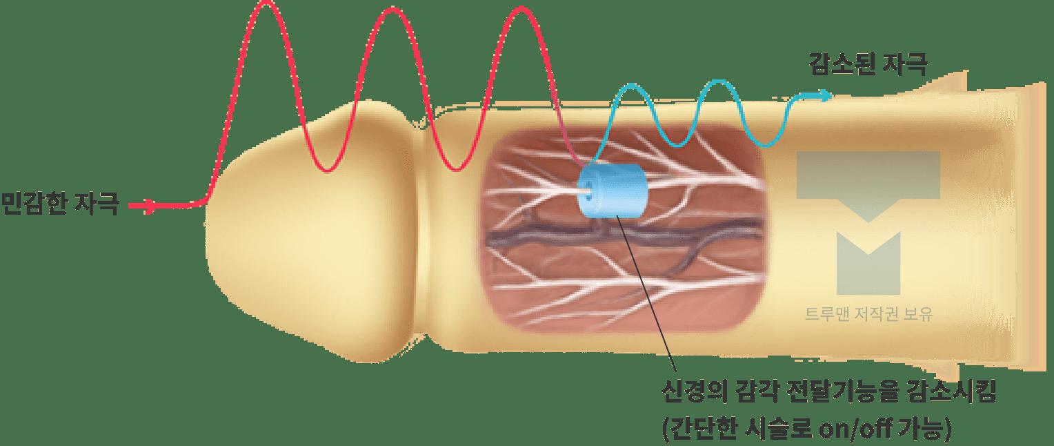 스위치 조루 수술의 원리