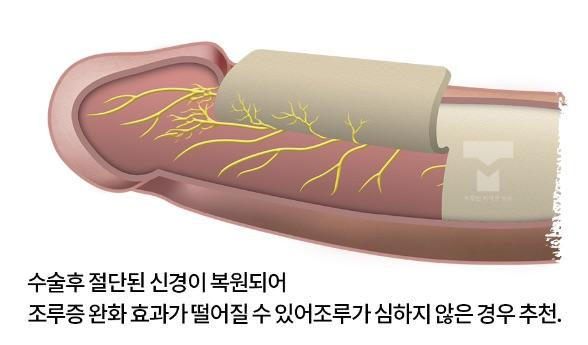 소대차단술 수술방법