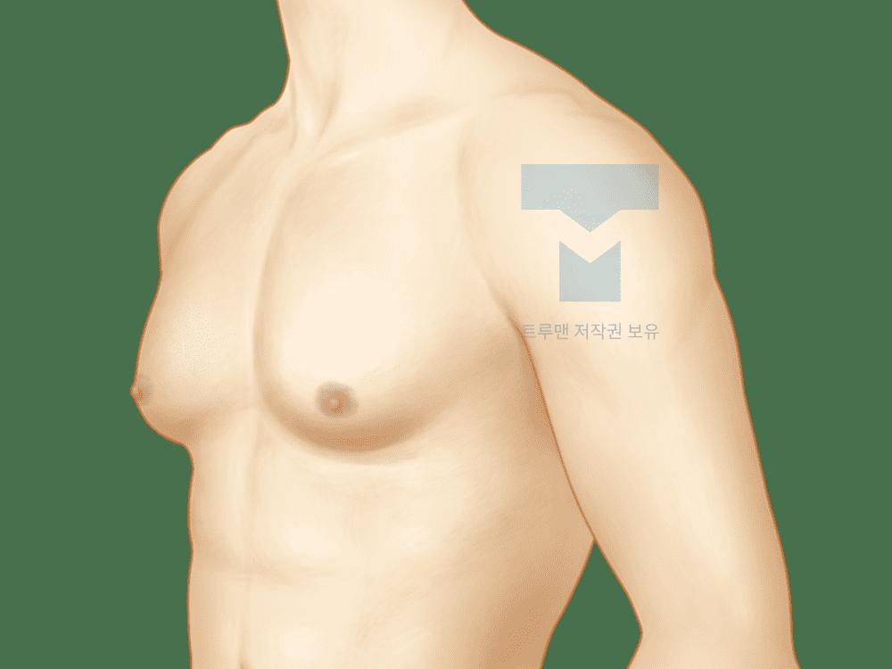 여유증 재발 또는 낮은 치료 효과