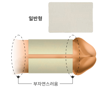 일반형 턱짐 현상