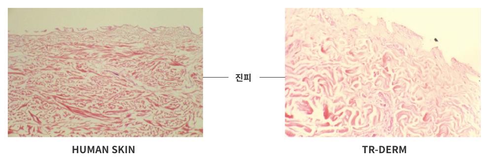 표피와 세포 제거 후 SEM 사진